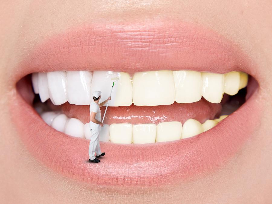 Branqueamento Dentario no Concelho de Mafra