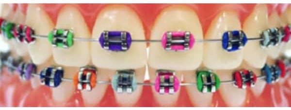 Aparelho dentário fixo ou Ortodontia Fixa