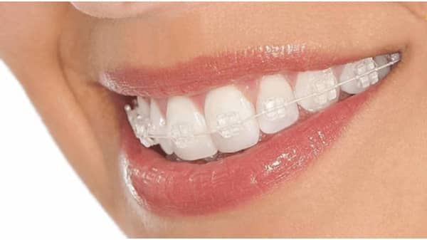 Aparelho Dentário Removível de Contenção
