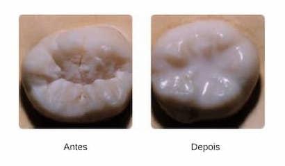 Aplicacao-de-Selantes-sr-implante mafra