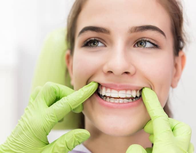 Os Aparelhos Dentarios em mafra