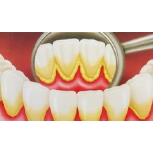 Periodontologia em mafra