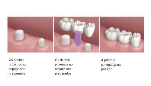 Pontes de dentes