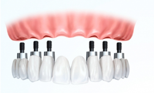 Proteses totais sobre implantes mafra