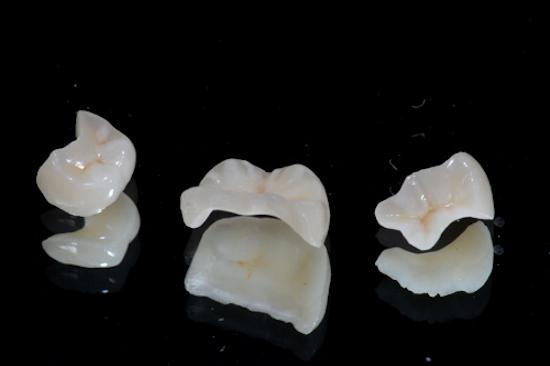 Restauro de Dentes com Fraturas ou Necessidades de Correcao