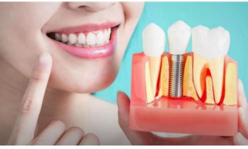 Vantagens dos Implantes Dentários mafra