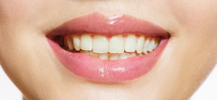 branquamente dentário antes em mafra malveira ericeira