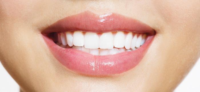 branquamento dentário depois mafra e malveira
