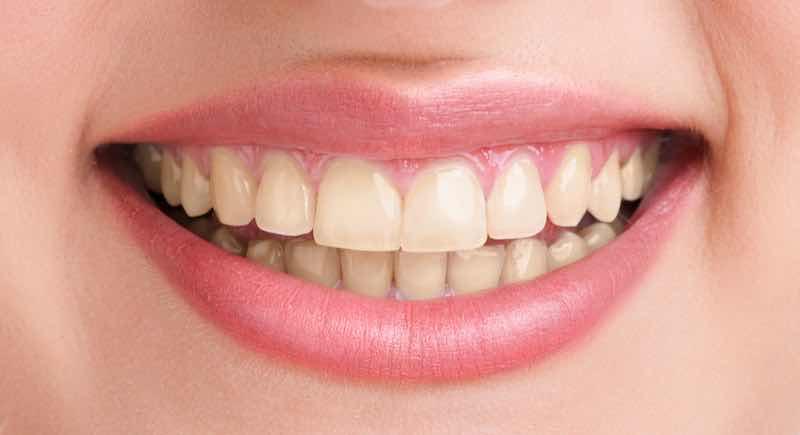 branqueamento dentário antes-sr implante mafra
