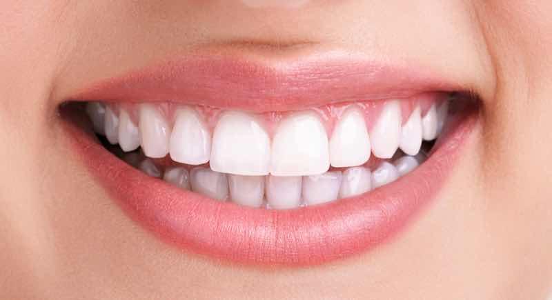 branqueamento dentário depois-sr implante mafra