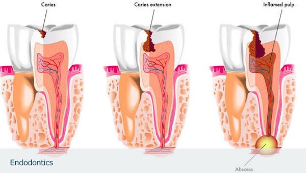 desvitalizar dente mafra