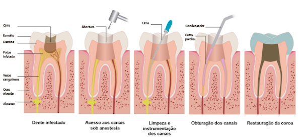 devitalizacao de um dente mafra