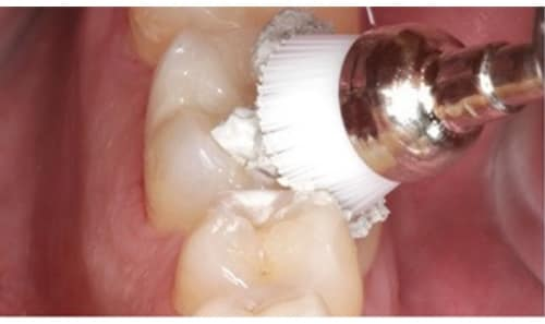 fazer Polimento dentário mafra