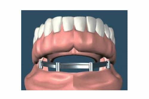 Próteses Dentárias Fixas