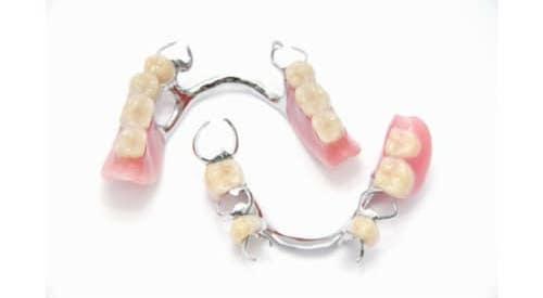 Próteses Dentárias Esqueléticas