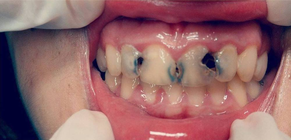 sr implante casos clinicos antes